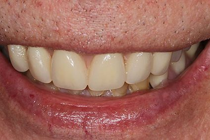 John after smile makeover at Dental Beauty Forest Hill in south east london