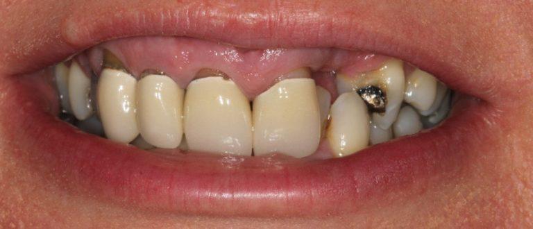 swanley dentist smile makeover