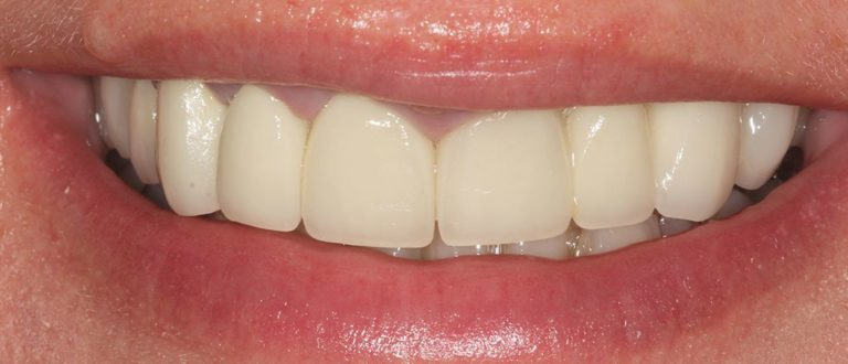 dental-smile-makeover-london